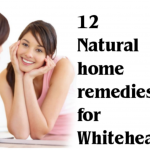 Top 12 Natural Home remedies for Whiteheads