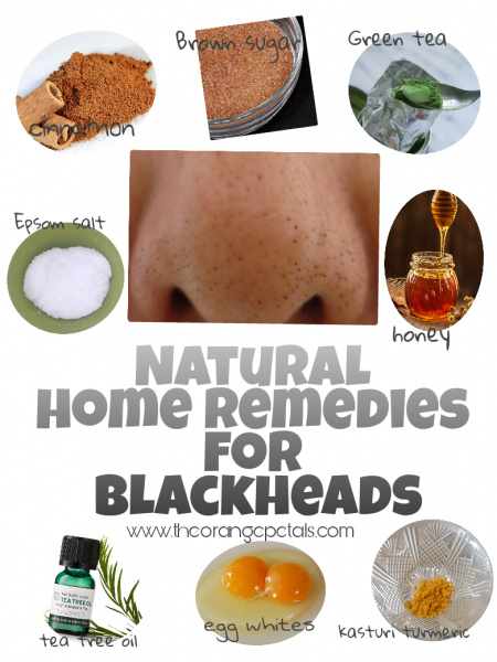 Natural Home remedies for blackheads